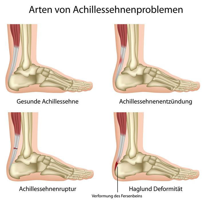 Arten von Achillessehnenproblemen