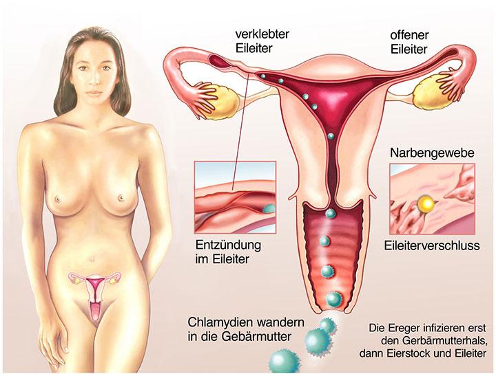 Chlamydien-Infektion