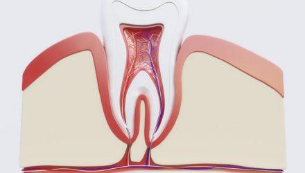 Schmerzen bei Entzündung der Zahnwurzel entgegen wirken